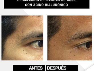 Tratamiento antiacné - 790576
