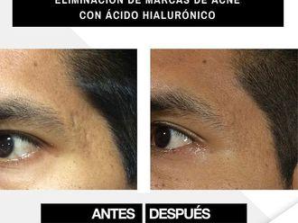 Tratamiento antiacné - 790580