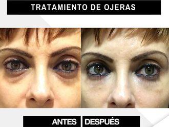 Tratamiento antiacné - 790581