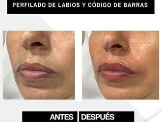 Aumento labios - 800662