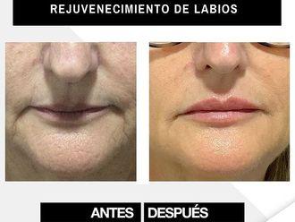 Aumento labios - 800677