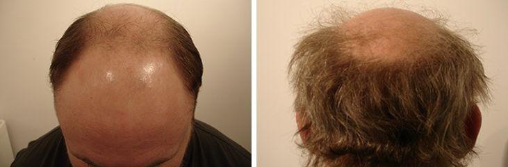 Antes y después tratamiento alopecia