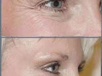 Rejuvenecimiento facial-418835