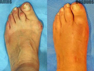 Antes y después Estrechamiento del pie