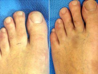 Antes y después Separación de dedos juntos