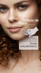 Labios perfectos con Ácido Hialurónico