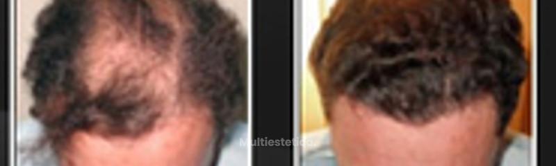 Antes y después hombre