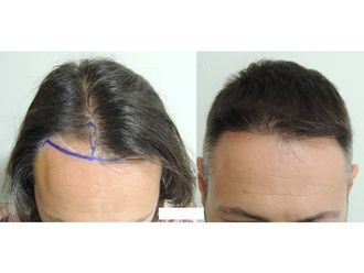 Dermatología-501389