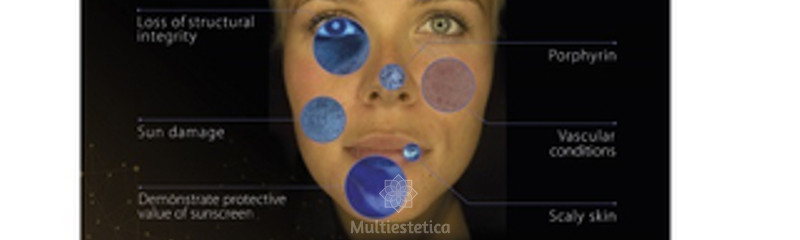 analisis_facial