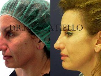 Rejuvenecimiento facial-248798