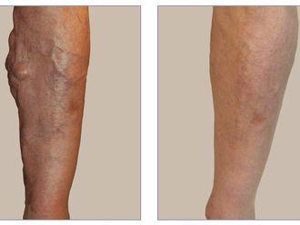 Tratamiento varices-421925