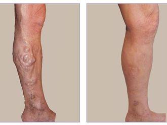 Tratamiento varices-421926