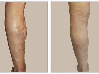 Tratamiento varices-421927