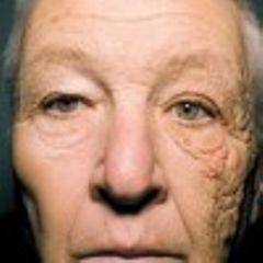 Tratamientos para pieles