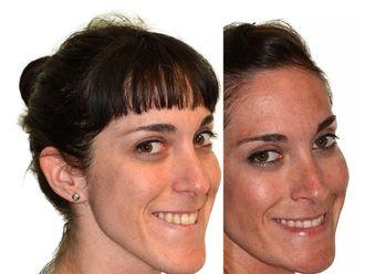 Cirugía maxilofacial-502203