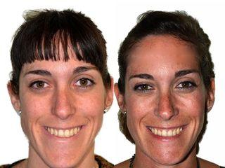 Antes y después Frente mentoplastia e injertos paranasales