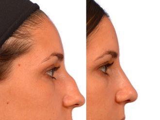 Cirugía estética-502205