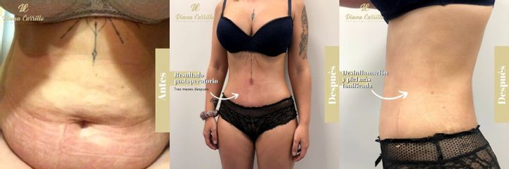 Drenaje Linfático - Diana Carrillo