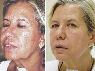 Radiofrecuencia facial - 490853