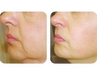Antes y después Radiofrecuencia facial
