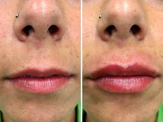 Antes y después Aumento labial con Ácido Hialurónico