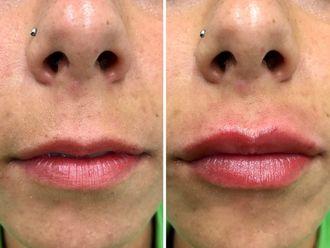 Aumento labios - 641019