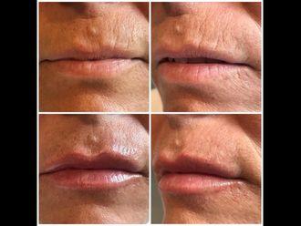 Rejuvenecimiento facial-641021