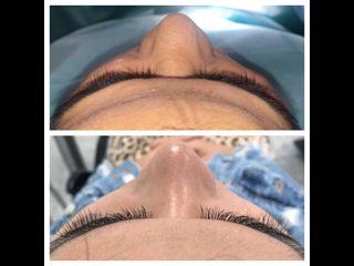 Antes y después Lipofilling en asimetría y hundimiento de pómulo derecho
