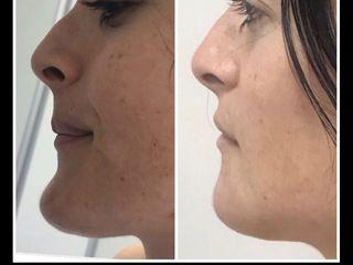 Antes y después mentoplastia de reducción (pre y post a la semana)
