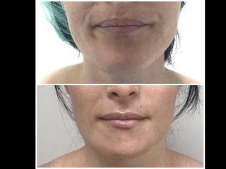 Antes y después mentoplastia de reducción (pre y postoperatorio a la semana)