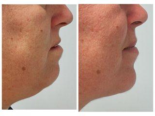 Antes y después liposucción cervical