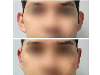 Antes y después otoplastia de reducción