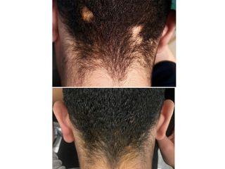 Antes y después Corrección cicatriz