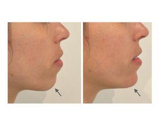 Antes y después mentoplastia aumento con ácido hialurónico