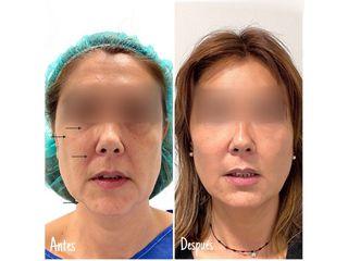 Antes y después lipofilling en: párpado inferior, pómulos, surcos nasogenianos y contorno mandibular