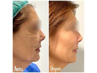 Antes y después lipofilling