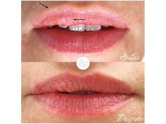 Aumento labios-698385