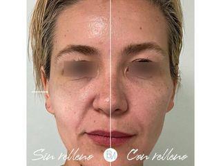 Antes y después Rellenos faciales - Dra. Beatriz Moralejo
