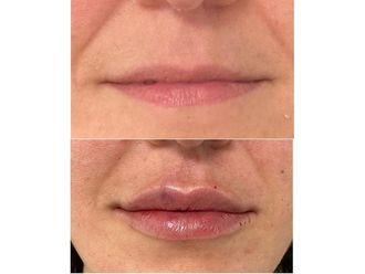 Aumento labios-698394