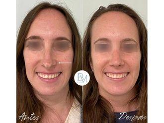 Rellenos faciales-698398