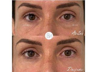 Antes y después Eliminación de ojeras - Dra. Beatriz Moralejo