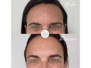 Antes y después Bótox - Dra. Beatriz Moralejo