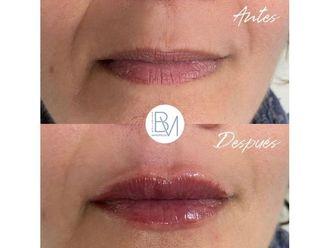 Aumento labios-698406