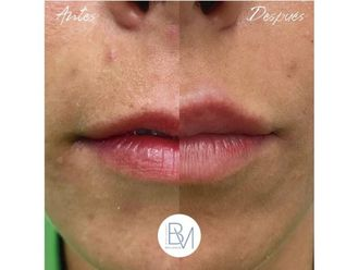 Aumento labios-698407