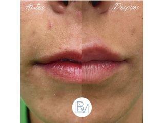 Antes y después Aumento de labios - Dra. Beatriz Moralejo