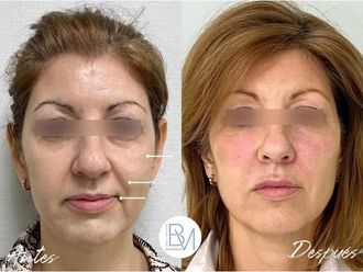 Rellenos faciales-698410