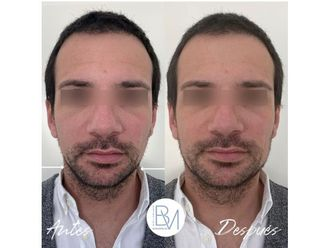 Rellenos faciales-698412