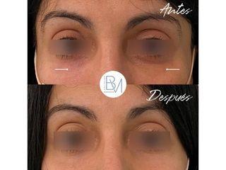 Eliminación de ojeras - Dra. Beatriz Moralejo