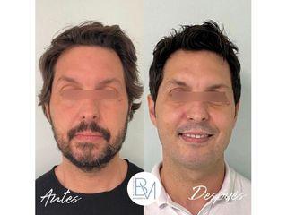 Antes y después Rejuvenecimiento facial - Dra. Beatriz Moralejo