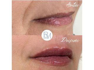 Aumento de labios - Dra. Beatriz Moralejo